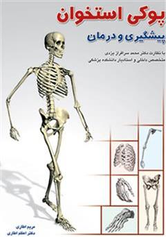 معرفی و دانلود کتاب پیشگیری و درمان پوکی استخوان